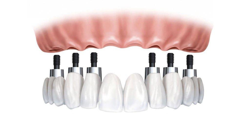Protesi Dentaria Salerno
